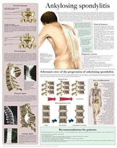 Ankylosing Spondylitis E-Chart: Quick Reference Guide by HC-HealthComm